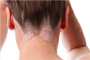 bolezni-lasisca