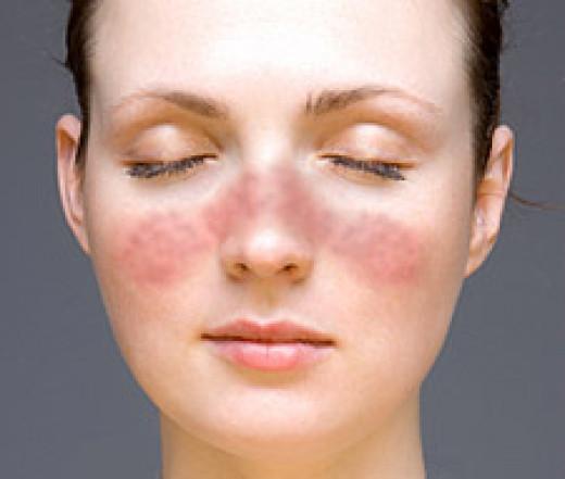 kožne bolezni2