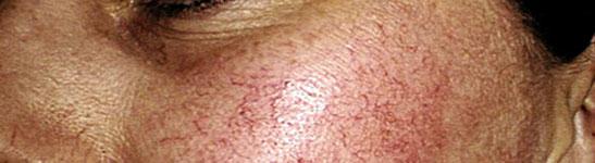 kapilare-dermatolog