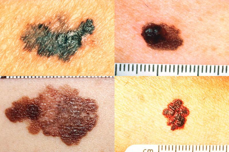 kozna-znamenja-dermatolog-abulanta-aljublajna-dermatologija-2